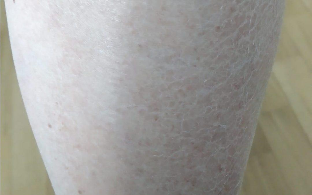 *** Problema Pelle Secca ***